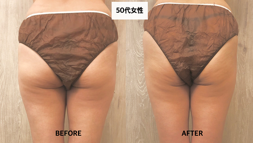 before-after写真